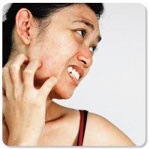 Skin irritation from allergies